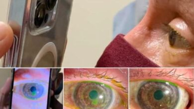 This new feature of iPhone pro max can help doctors in treating eye problems 9