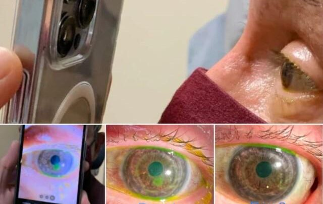This new feature of iPhone pro max can help doctors in treating eye problems 1